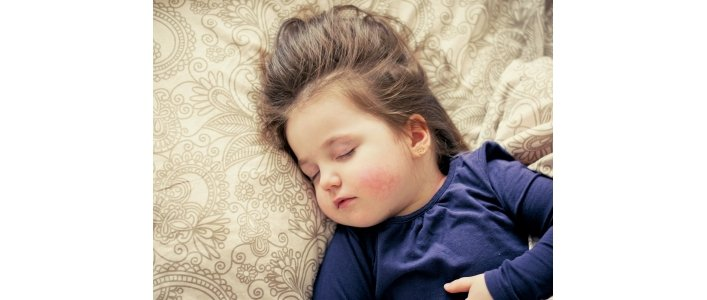 Scarlet Fever On The Rise