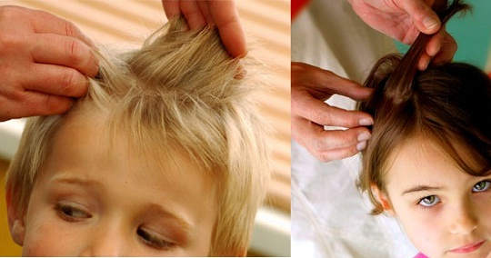 Best Buys For Beating Head Lice