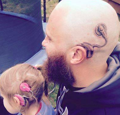 Dad gets cochlear implant